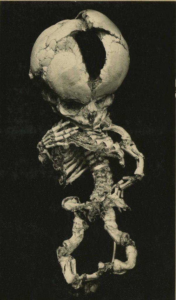 Szkielet płodu