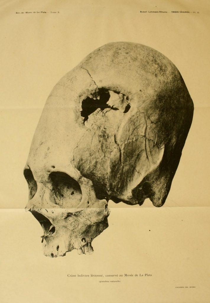 Przykład celowej deformacji czaszki: tabular oblique Revista del Museo de La Plata, 1902, domena publiczna